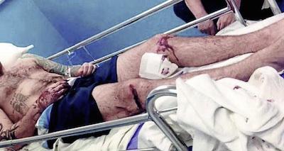 sturgeoninjuries.jpg